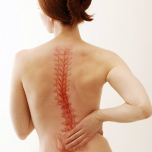 scoliosis-treatment2