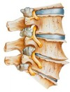 Arthritis of The Spine is Often More Serious Than You Realize