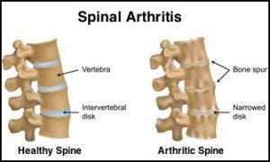 Osteoarthritis_Spine
